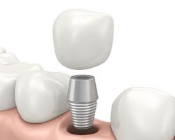 Components of a Dental Implant | The Foehr Group in Bloomington, IL | Dr. Wolf
