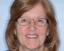 Dental Patient Photo After Dental Crowns Treatment   The Foehr Group in Bloomington, IL   Dr. Wolf