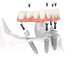 All-on-4 Dental Implants in Bloomington, IL | The Foehr Group | Dr. Wolf